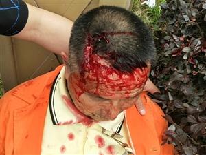 环卫工人严重受伤