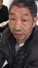 尘肺三期病危求助