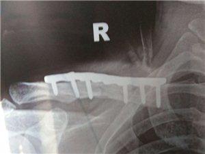 鎖骨骨折加了鋼板多長時間能干活,頸椎病怎么能治好