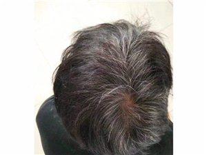 中华禅洗白转黑洗发水