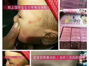 适应宝宝湿疹,痱子,红屁股,尿布疹,奶癣,需要的加上面微信