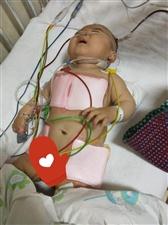 缅甸华纳国际的爱心人救救这个可怜的孩子吧