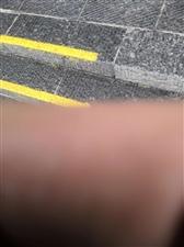 淮�I�⑺�的路太滑�T二��瓶�摔倒在路上摔骨折